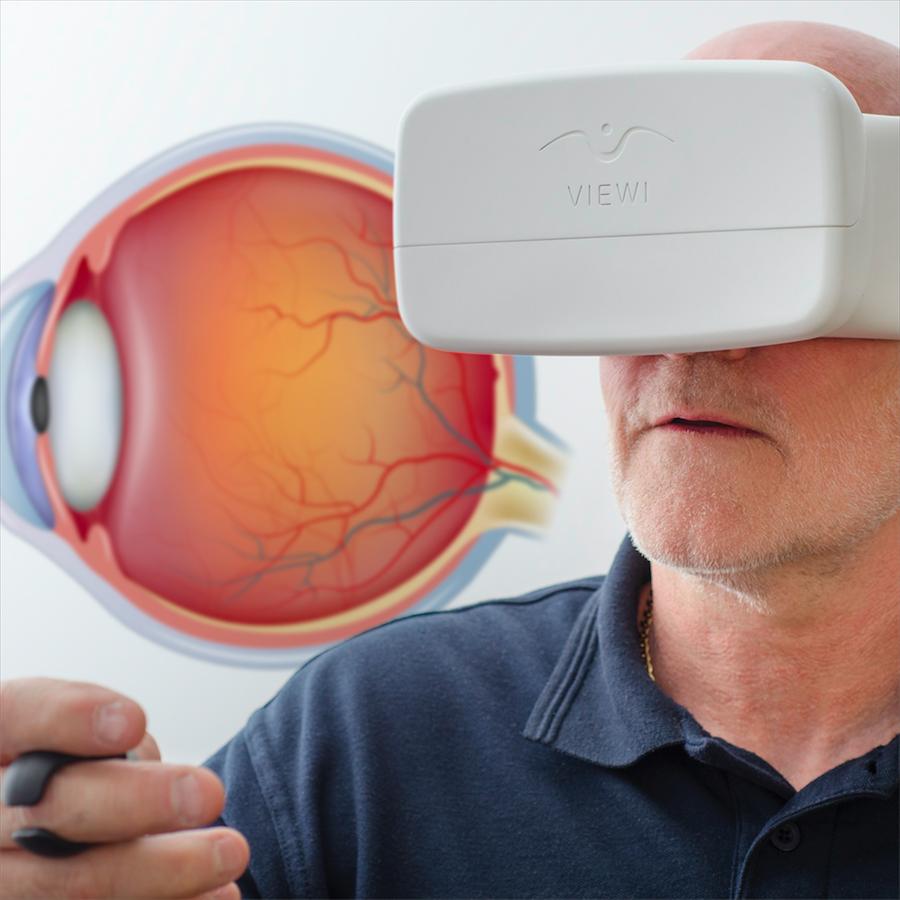 smartphone glaucoma