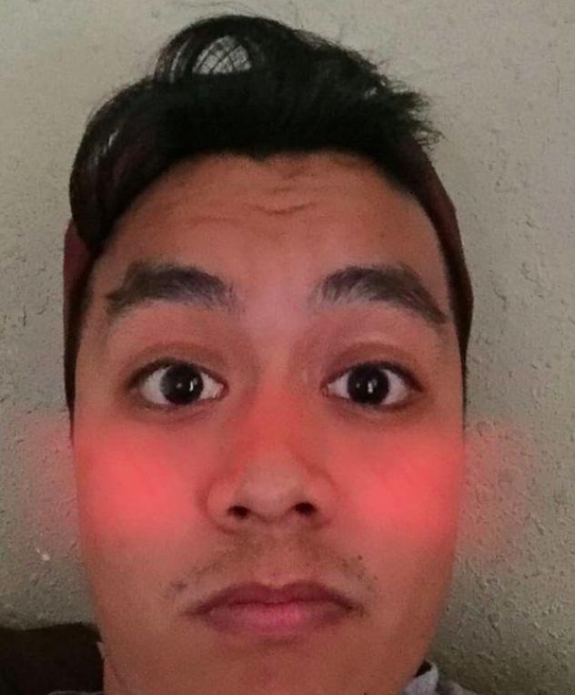 lense cheeks