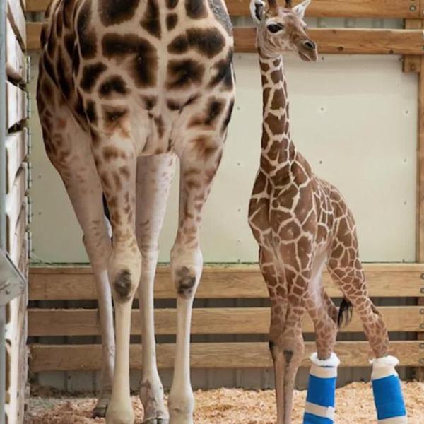 jirafa bebé zapatos ortopedicos